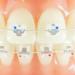 歯が黄ばみやすい矯正治療中でもきれいに保つには?