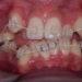 成人の歯列矯正期間は10歳年齢差があると2倍かかる!?