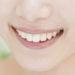 前歯だけもOK!部分矯正で気になる歯だけを矯正する